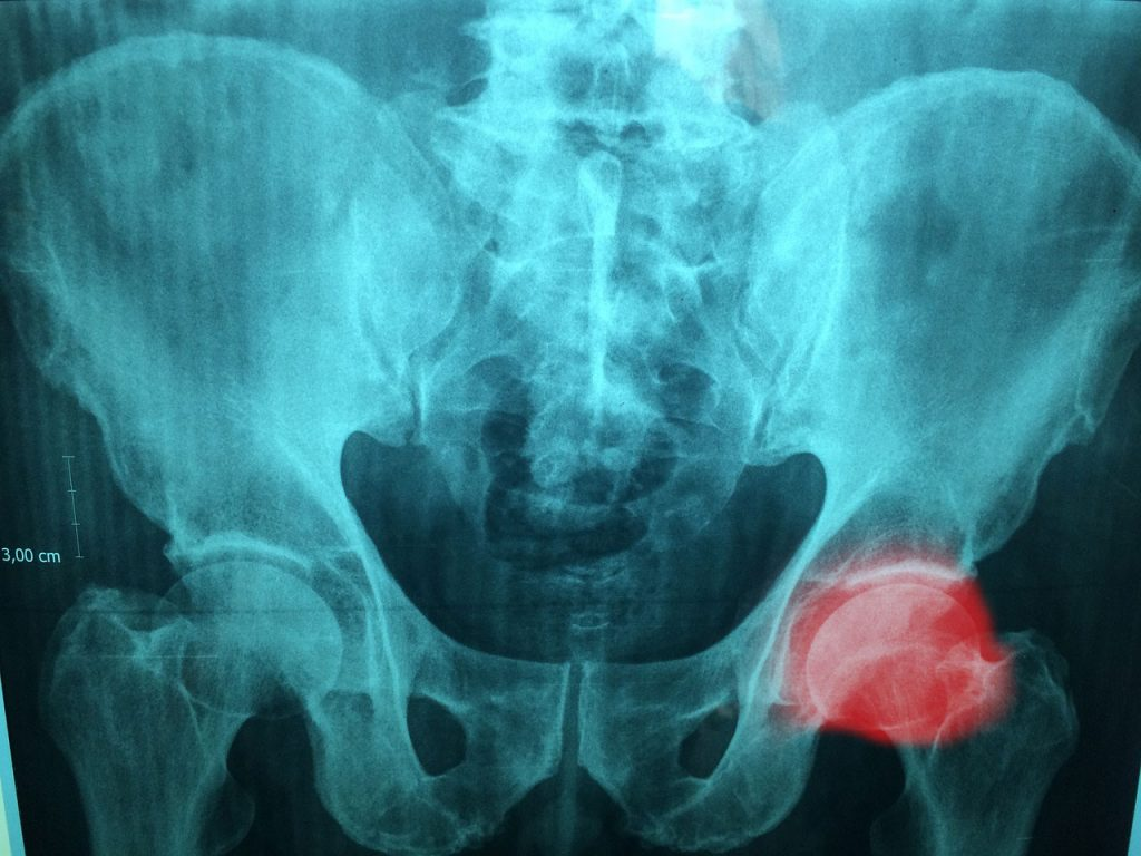 hip pain x-ray