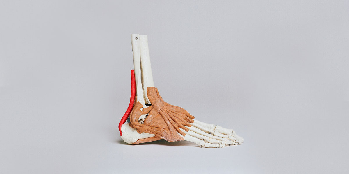 Achilles Tendon Tears How Do You Know If Your Achilles Is Torn